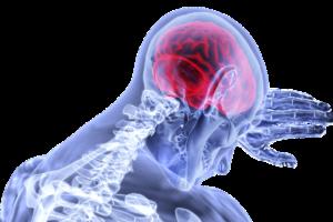 Cerveau, Inflammation, Accident Vasculaire Cérébral